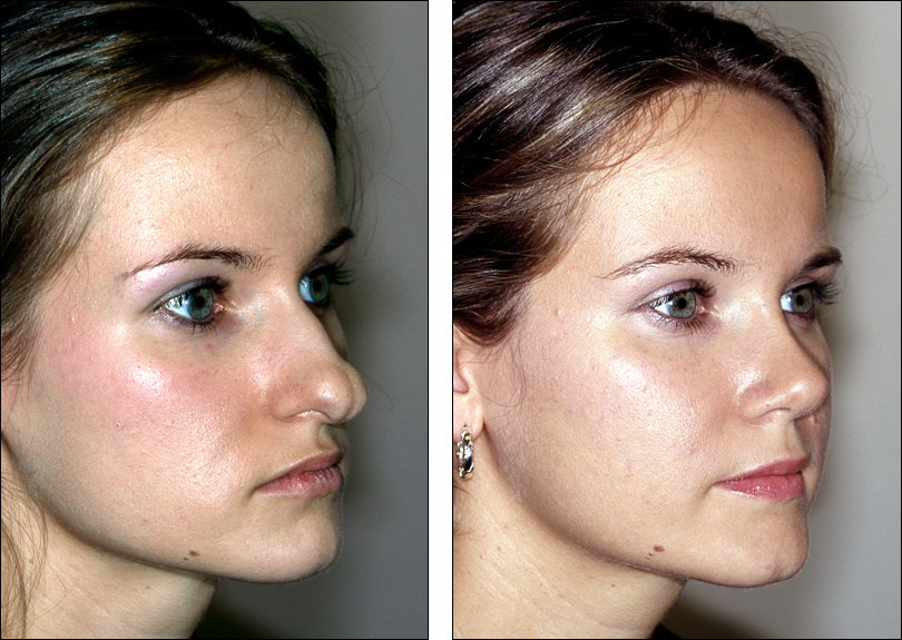 how to make a bulbous nose smaller without surgery